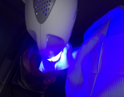 I Bought A Groupon To Get My Teeth Whitened And Will Never Do It Again